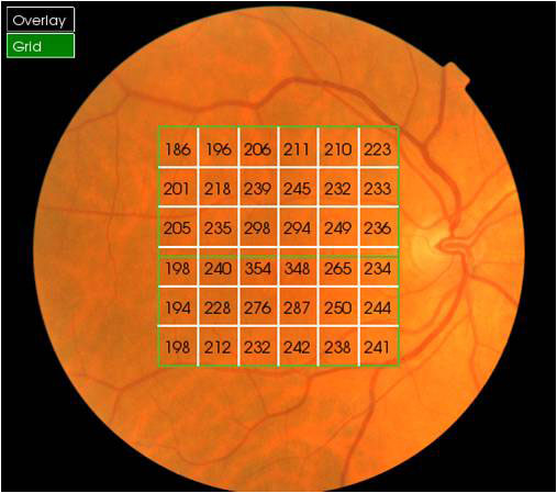 46b49be07f0 3D OCT Eye Scan · Age Related Macular Degeneration