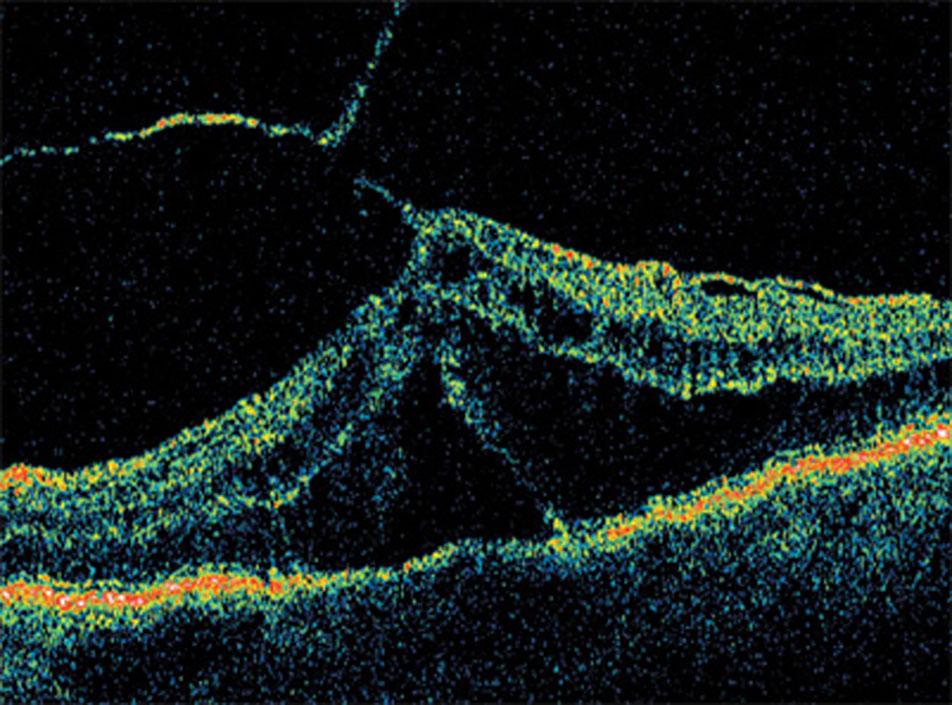 c4ce42ce293 Retinal Detachment seen through OCT Eye Scan