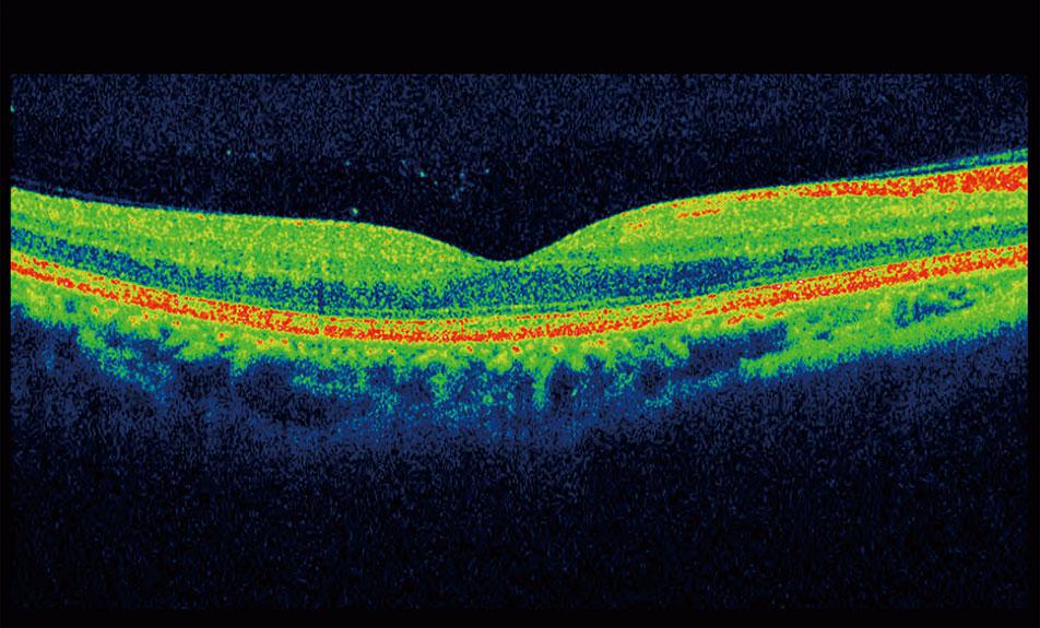 10a22c733d0 3D OCT Eye Scan