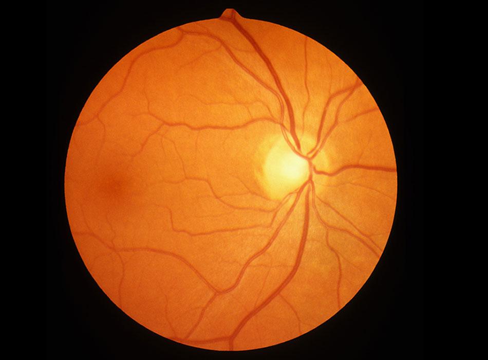 6f32f476cdb OCT Retina Scan at Benjamin Opticians